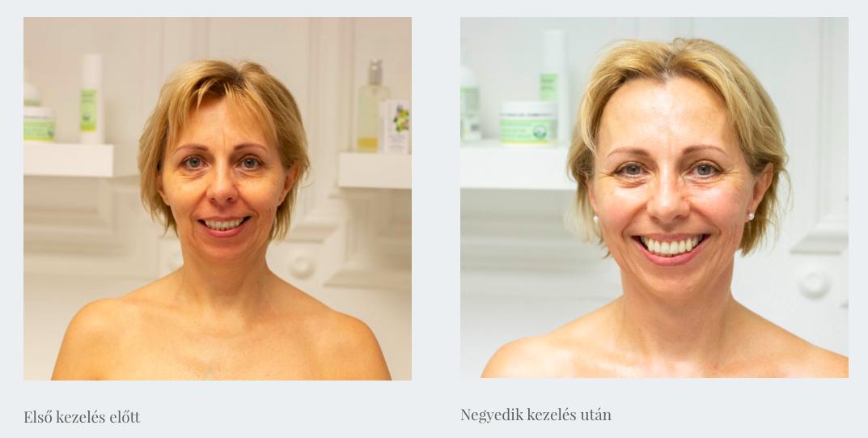 naturalis arcplasztika kezeles